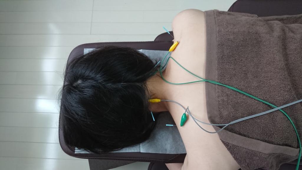当院おすすめ「パルス鍼」 鍼灸治療院 一歩堂 / しんきゅうちりょういん いっぽどう